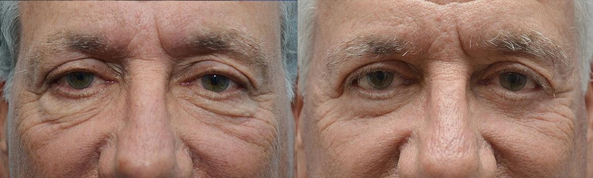 Westlake Village Eyelid Surgery