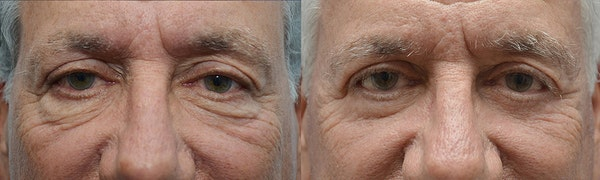 Eyelid Surgery Gallery - Patient 4588566 - Image 1
