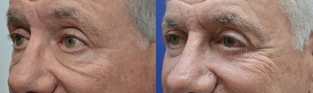Eyelid Surgery Gallery - Patient 4588566 - Image 3