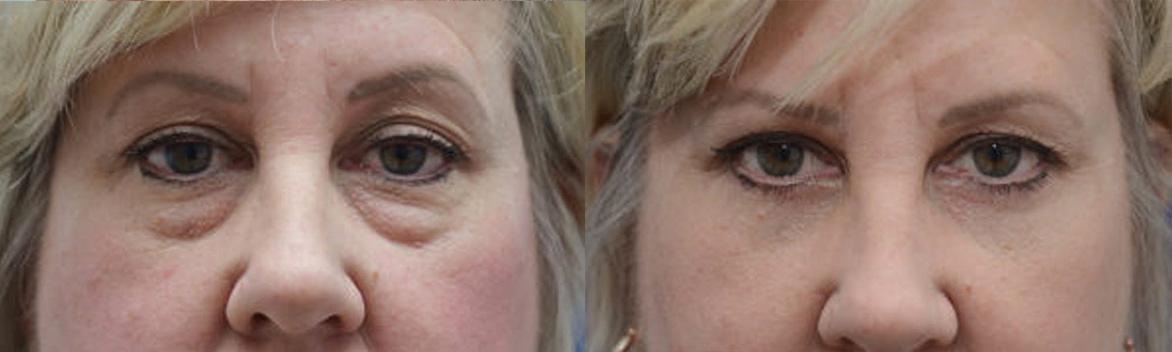 Thousand Oaks Eyelid Surgery