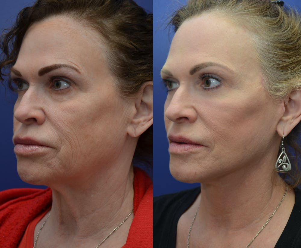 Facelift Gallery - Patient 4588110 - Image 1