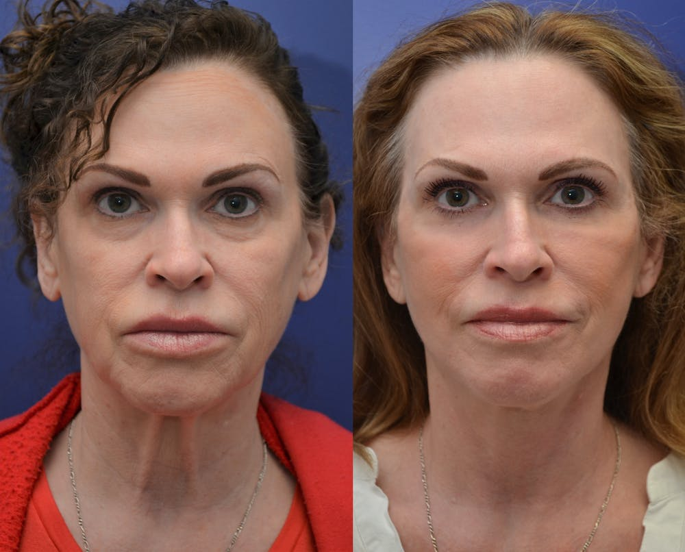 Facelift Gallery - Patient 4588110 - Image 2