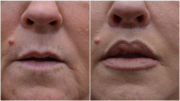 Lip Lift Gallery - Patient 4588525 - Image 1