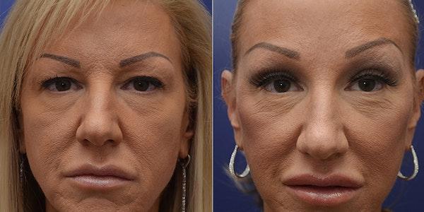 Facelift Gallery - Patient 4588112 - Image 1