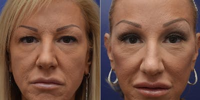 Facelift Gallery - Patient 4588112 - Image 1