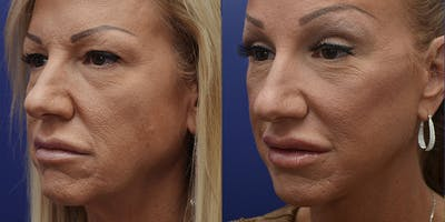 Facelift Gallery - Patient 4588112 - Image 2