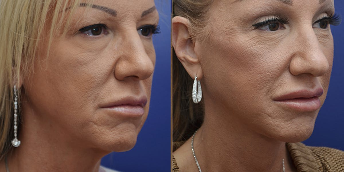 Facelift Gallery - Patient 4588112 - Image 3
