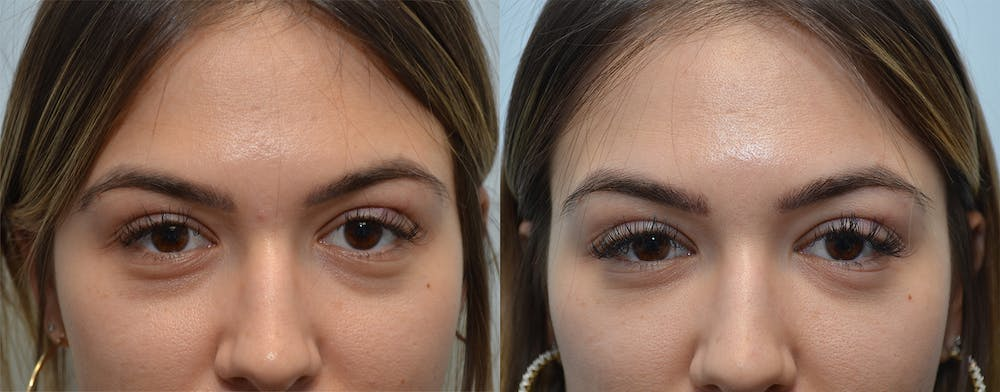 Under Eye Rejuvenation Gallery - Patient 4588629 - Image 1