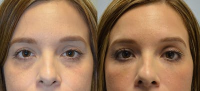 Non-Surgical Soft Tissue Fillers Gallery - Patient 4594131 - Image 8