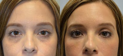 Non-Surgical Soft Tissue Fillers Gallery - Patient 4594131 - Image 1