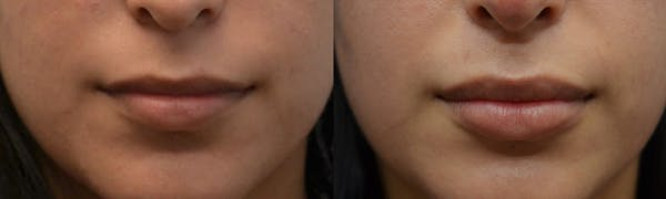 Non-Surgical Soft Tissue Fillers Gallery - Patient 4594094 - Image 1