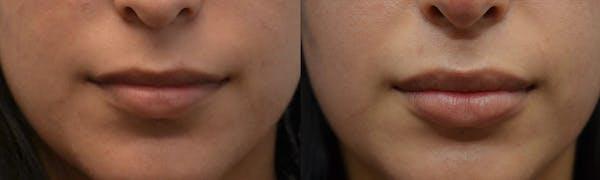Lip Enhancement Gallery - Patient 4588503 - Image 1