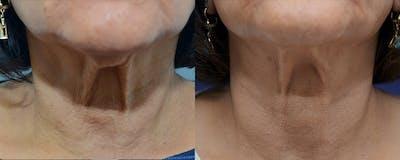 Facetite™: Non-Surgical Facelift Gallery - Patient 4588394 - Image 2