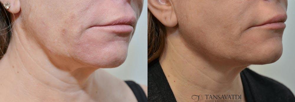 Facetite™: Non-Surgical Facelift Gallery - Patient 4588396 - Image 1