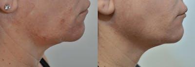 Facetite™: Non-Surgical Facelift Gallery - Patient 4588396 - Image 2