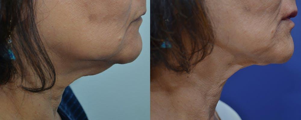 Fractora Gallery - Patient 4588451 - Image 1