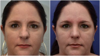 Rhinoplasty (Nose Reshaping) Gallery - Patient 4588534 - Image 1