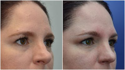 Rhinoplasty (Nose Reshaping) Gallery - Patient 4588534 - Image 2