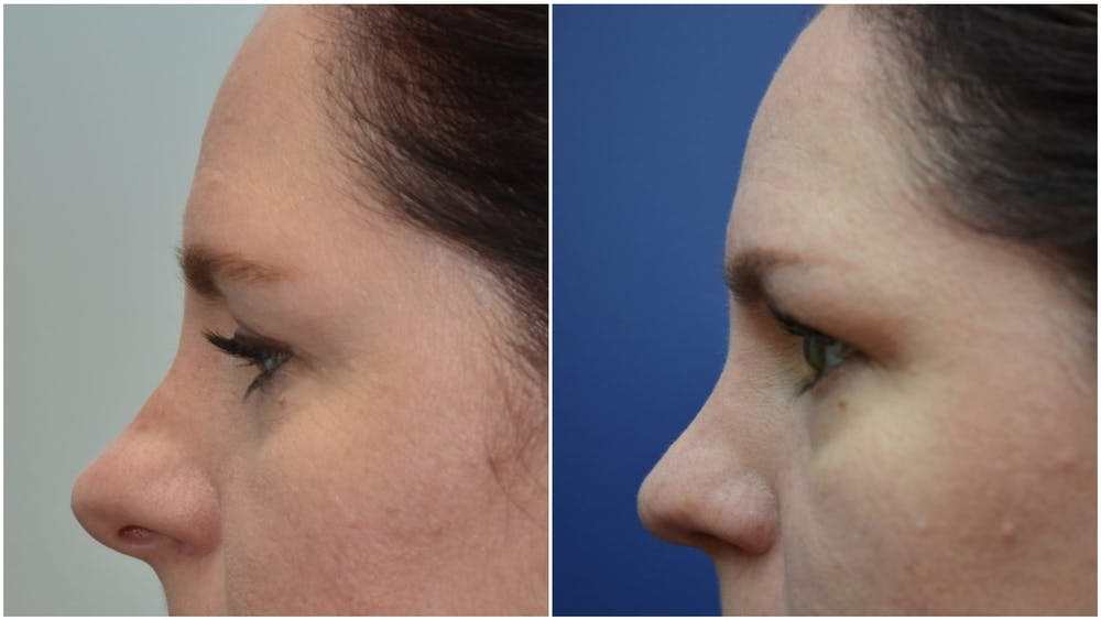 Rhinoplasty (Nose Reshaping) Gallery - Patient 4588534 - Image 3