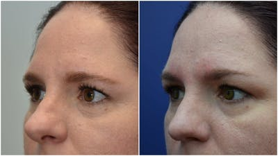 Rhinoplasty (Nose Reshaping) Gallery - Patient 4588534 - Image 4