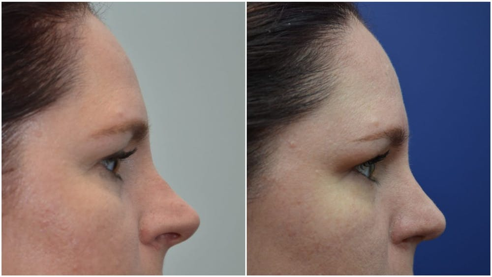 Rhinoplasty (Nose Reshaping) Gallery - Patient 4588534 - Image 5