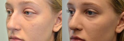 Rhinoplasty (Nose Reshaping) Gallery - Patient 4631071 - Image 1