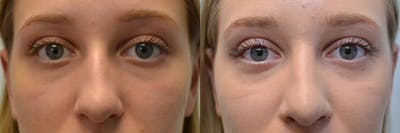 Rhinoplasty (Nose Reshaping) Gallery - Patient 4631071 - Image 2