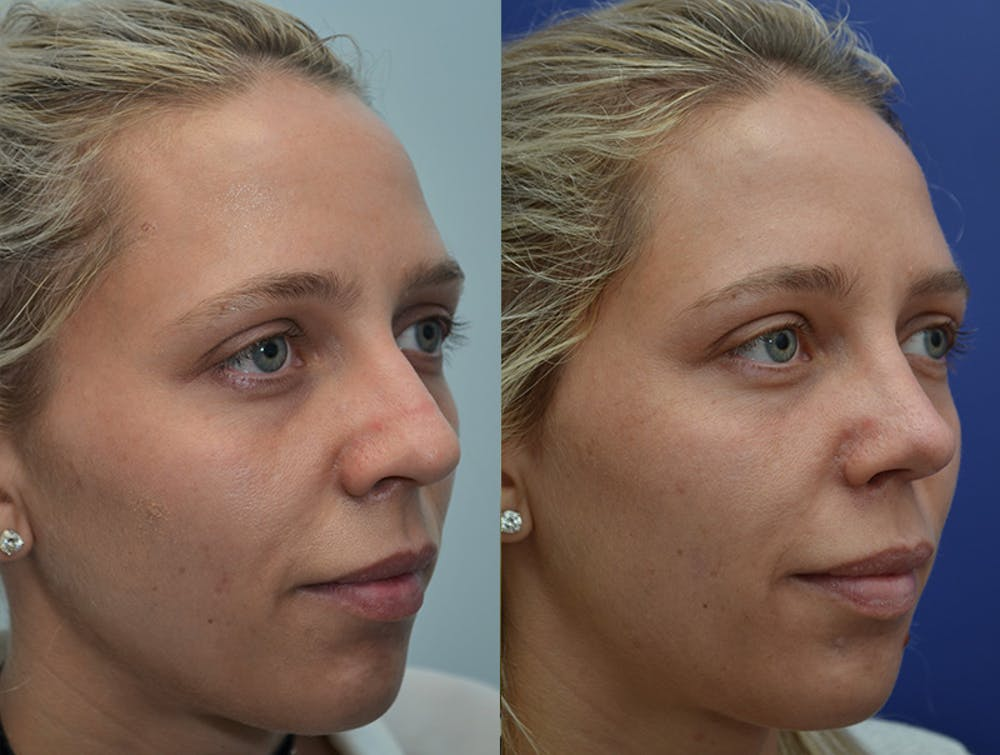 Rhinoplasty (Nose Reshaping) Gallery - Patient 4631072 - Image 3