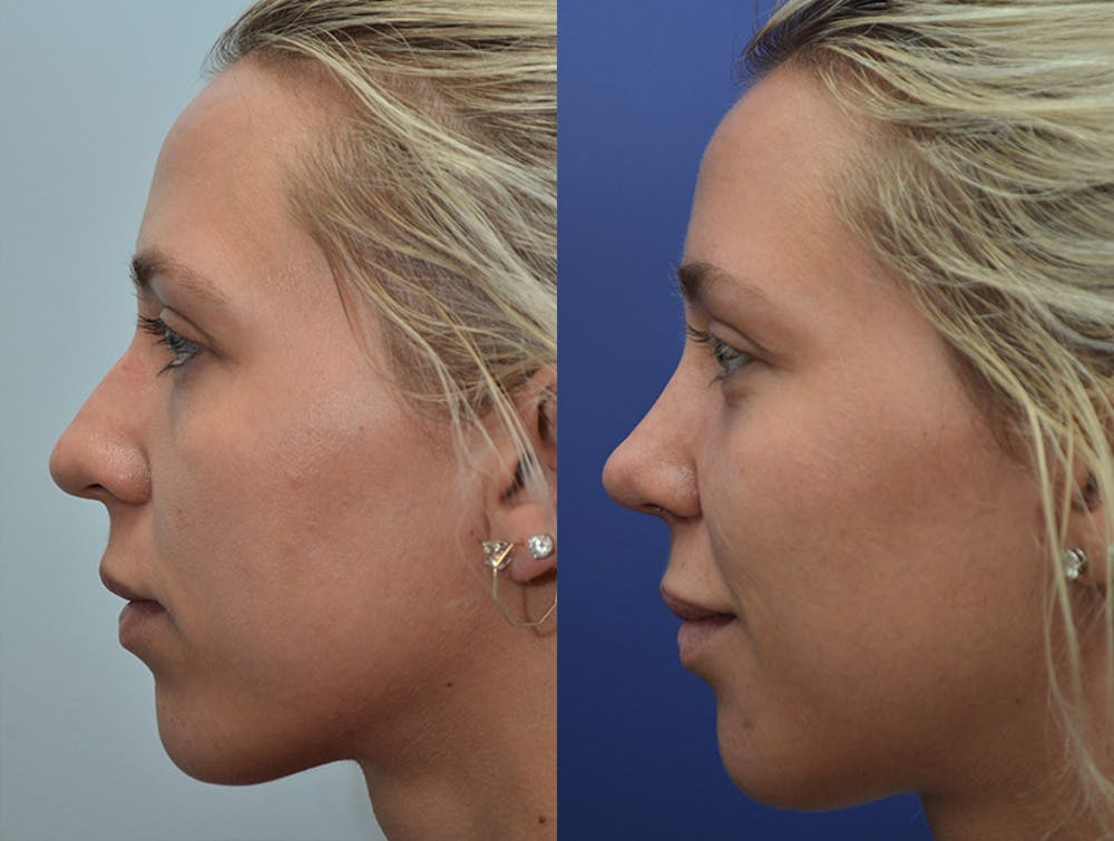 Rhinoplasty (Nose Reshaping) Gallery - Patient 4631072 - Image 2