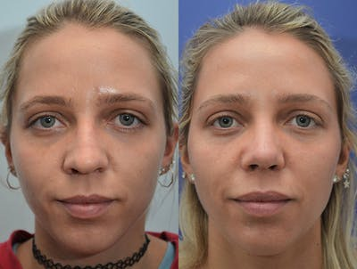 Rhinoplasty (Nose Reshaping) Gallery - Patient 4631072 - Image 1