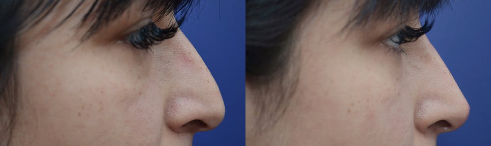 Non-Surgical Augmentation Gallery - Patient 4588545 - Image 1