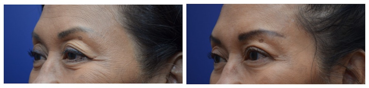 Upper Eyelid Ptosis Repair Gallery - Patient 4588779 - Image 3