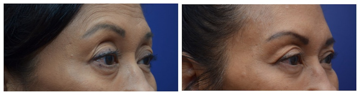 Upper Eyelid Ptosis Repair Gallery - Patient 4588779 - Image 2