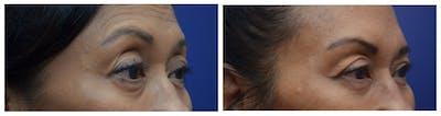 Upper Eyelid Ptosis Repair Gallery - Patient 4588779 - Image 2