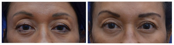 Upper Eyelid Ptosis Repair Gallery - Patient 4588779 - Image 1
