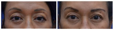 Eyelid Surgery Gallery - Patient 4631083 - Image 1