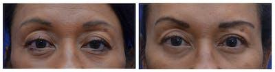 Upper Eyelid Ptosis Repair Gallery - Patient 4588779 - Image 1