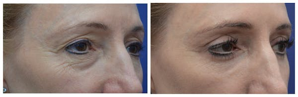 Eyelid Surgery Gallery - Patient 4588563 - Image 1