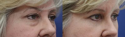 Eyelid Surgery Gallery - Patient 4588569 - Image 2