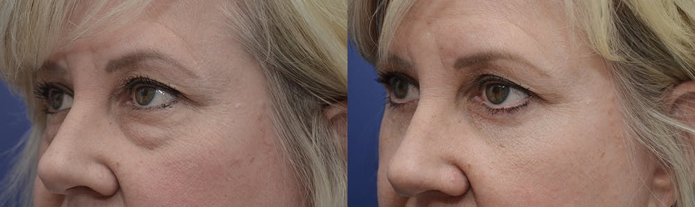 Eyelid Surgery Gallery - Patient 4588569 - Image 3
