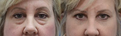 Eyelid Surgery Gallery - Patient 4588569 - Image 4