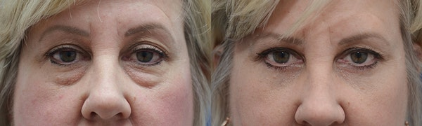 Eyelid Surgery Gallery - Patient 4588569 - Image 1