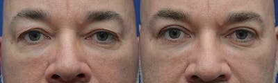 Eyelid Surgery Gallery - Patient 4588586 - Image 5