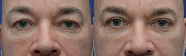 Eyelid Surgery Gallery - Patient 4588586 - Image 1