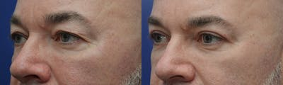 Eyelid Surgery Gallery - Patient 4588586 - Image 2