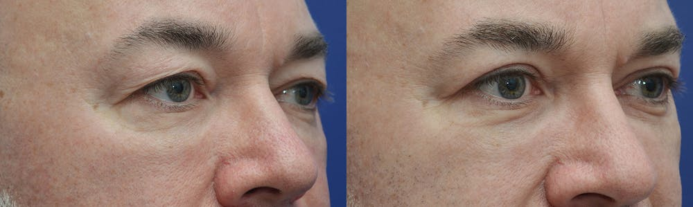 Eyelid Surgery Gallery - Patient 4588586 - Image 3