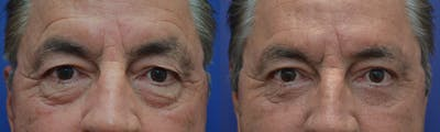 Brow Lift (Forehead Lift) Gallery - Patient 4588632 - Image 1
