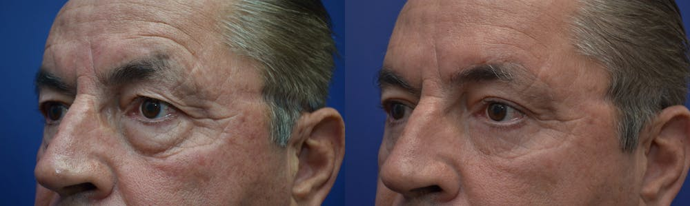 Eyelid Surgery Gallery - Patient 4588587 - Image 2