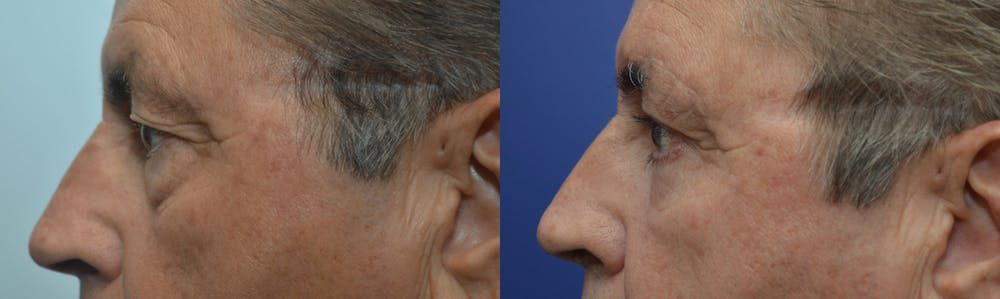 Eyelid Surgery Gallery - Patient 4588587 - Image 3