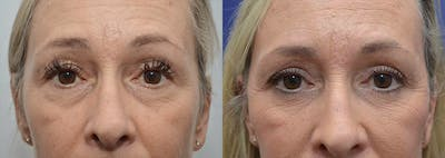 Eyelid Surgery Gallery - Patient 4588588 - Image 7